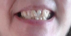teethbefore